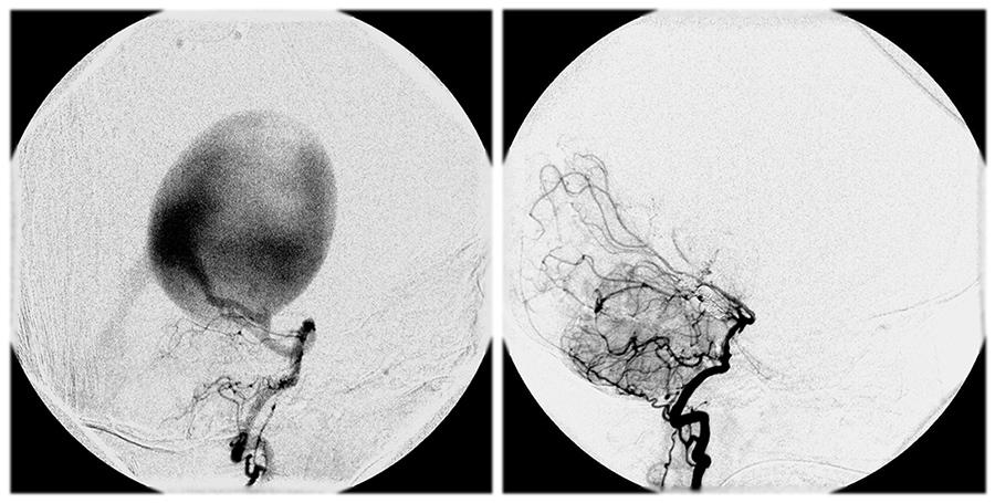 Мальформация артериовенозная фото